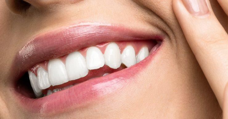 Bis zu 70% weissere Zähne